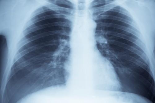 Как сделать рентген ребер